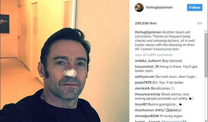 Via http://i2.cdn.cnn.com/cnnnext/dam/assets/170214020159-hugh-jackman-cancer-instagram-super-169.jpg